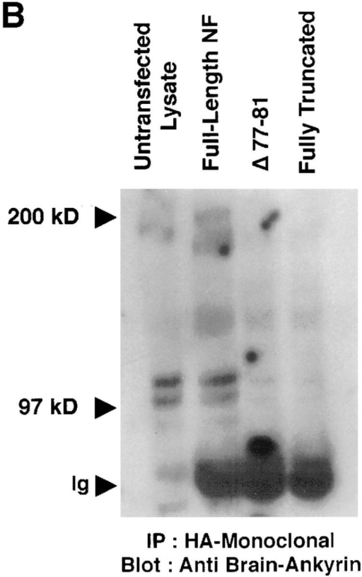 The highly conserved FIGQY amino acid stretch in the cytoplasmic domain of neurofascin is responsible for ankyrin binding.  (A) Cytoplasmic sequences of L1 family cell adhesion molecules and definition of the neurofascin cytoplasmic domain constructs. (B)  Epitope-tagged neurofascin was immunoprecipitated from 250 μg crude cell lysate, as previously described. Immune complexes were  captured on protein A–Sepharose beads and electrophoresed on SDS-PAGE. Resolved proteins were transferred to nitrocellulose and  incubated overnight at 4°C with a brain ankyrin-specific polyclonal antibody. After incubation with 125I-labeled protein A (2 h at 4°C),  immunoblots were visualized by autoradiography. (C) HA-epitope tagged neurofascin was expressed in B104 cells and subsequently immunoprecipitated from 250 μg crude cell lysate as described previously. Captured immune complexes (on protein A–labeled latex  beads) were then used for the in vitro ankyrin binding assays that have been described above.