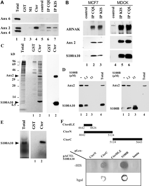 Interaction of the annexin 2/S100A10 complex with AHNAK. (A). MCF-7 cell extracts were incubated with glutathione-Sepharose (lanes 2–4) or protein A–Sepharose (lanes 5–7) in the presence of recombinant GST alone (lane 2), recombinant GST fused to AHNAK central repeat domain M1 (lane 3), recombinant GST fused to AHNAK COOH-terminal domain (lane 4), anti-AHNAK-CQL antibody (lane 6), or anti-AHNAK-KIS antibody (lane 7). Bound proteins were analyzed by Western blotting with anti-annexin 2, -4, and -6 antibodies. Lane 1 is total cell extract. (B). MCF-7 or MDCK cell extracts were incubated with control protein A-Sepharose beads (lanes 1and 4), or with anti-AHNAK-CQL (lanes 2 and 6) or anti-AHNAK-KIS (lanes 3 and 5) antibodies. Coimmunoprecipitated proteins were analyzed by Western blotting with anti-AHNAK-KIS, anti-annexin 2, and anti-S100A10 antibodies. (C) S100A10 and annexin 2 are the major proteins that interact with the AHNAK Cter domain. [35S]Methionine/cysteine labeled MDCK whole-cell extracts (total; left) were incubated with GST (lane 1) and GST fusion AHNAK-Cter (lane 2) in EGTA/EDTA-containing buffer. Bound proteins were resolved on SDS-PAGE and were detected either by autoradiography (left) or blotted on nitrocellulose membrane and detected with mixed anti-annexin 2 and anti-S100A10 mAbs (right). (D) S100B antagonizes annexin 2/S100A10 binding to the AHNAK Cter domain. U87 cell extracts were incubated with GST fusion AHNAK-Cter in the absence (lane 1) or in the presence (lanes 2 and 3) of increasing S100B concentrations in Ca2+/Zn2+-containing buffer. Bound proteins were analyzed by Western blotting using anti-annexin 2 and anti-S100A10 antibodies (left), or with anti-annexin 2 and anti-S100B antibodies (right). Lane 4 is total cell extract. (E) [35S]Methionine/cysteine-labeled S100A10 was produced in rabbit reticulocyte (total), and the translation reaction was incubated with glutathione-Sepharose in the presence of recombinant GST (lane 1) or recombinant GST fused to the AHNAK COOH-terminal domain (lane 2) in Ca2+/Zn2+-containing buffer. Bound proteins were resolved on SDS-PAGE and detected by autoradiography. (F) S100A10 specifically interacts with AHNAK CterC and S100B in the yeast two-hybrid system. Top: diagram of the various AHNAK COOH-terminal fragments used. Yeast were cotransfected with S100A10 pACT2 vector and different baits corresponding to AHNAK Cter deletion mutants, S100B, and lamin cloned into the pLEX vector as indicated. The interactions were scored by the growth of transfected yeast on YC-UWLH medium lacking histidine (HIS) and confirmed by β-galactosidase activity assay (bgal).