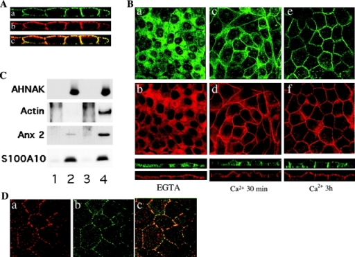 AHNAK colocalizes with the annexin 2/S100A10 complex at the plasma membrane in MDCK cells. (A) Confocal microscopy analysis (x-z axis) of the distribution in confluent MDCK cells of AHNAK (a), annexin 2 (b), and merge image (c). (B) Disruption of calcium-dependent cell–cell contacts causes the dissociation of AHNAK and annexin 2/S100A10 from the plasma membrane. Confluent MDCK cells were incubated in medium containing 5 mM EGTA supplemented with 1 mM MgCl2 for 30 min at 37°C (a and b), and were then shifted to calcium-containing medium for 30 min (c and d) or 3 h (e and f). Cultures were double immunolabeled for AHNAK (a, c, and e) and S100A10 (b, d, and f). Single-plane confocal microscopy (x-y axis) and x-z section (bottom) images are shown. (C) Confluent MDCK cells incubated with EGTA-MgCl2 medium for 30 min (lanes 1–2), then shifted back to Ca2+-containing medium for 3 h (lanes 3 and 4), were cross-linked with dithiobis succinimidyl propionate. Whole-cell lysates were incubated with protein A–Sepharose beads (lanes 1 and 3) or anti-AHNAK-CQL antibody cross-linked onto Sepharose beads (lanes 2 and 4). Immunoprecipitated proteins were reduced and analyzed by Western blot with anti-AHNAK-CQL, anti-actin, mouse monoclonal anti-annexin 2, and anti-S100A10 antibodies. (D) Confocal immunofluorescence of actin stained with phalloidin (a) and AHNAK (b) in MDCK cells treated with 1 μg/ml cytochalasin D for 1 h (c) is the merged image.