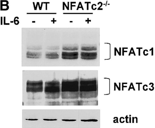 NFATc2 is required for IL-6–mediated Th2 differentiation. (A) Total RNA from wild-type (WT) or NFATc2-deficient (NFATc2−/−) CD4+ T cells that were stimulated for 2 d in the presence or absence of IL-6 was subjected to RPA analysis. (B) NFATc1 and NFATc3 protein levels were determined by Western blot analysis of whole cell lysates from wild-type and NFATc2−/− CD4+ T cells stimulated for 4 d in the presence or absence of IL-6. Actin is shown as a loading control. (C) CD4+ T cells from wild-type or NFATc2−/− mice were stimulated for 4 d with anti-CD3 and anti-CD28 mAbs in the absence (−) or presence of IL-6. After 4 d cells were washed, restimulated with anti-CD3, and IL-4 production was determined after 24 h. Results are representative of three experiments. (D) NFAT-mediated differentiation of Th2 cells by IL-6.