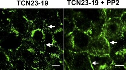 Effect of Src inhibitor PP2 on the cellular distribution of Cav1. TCN23-19 cells were treated with 2 μM of PP2 for 5 h; afterward, both control and PP2-treated cells were stained for Cav1. The plasma membrane signals were labeled by solid arrows in both treated and untreated cells to illustrate the recovery of Cav1 signal in the plasma membrane of PP2-treated cells. A set of representative images from three experiments is shown. Bar, 5 μm.