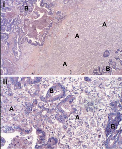 Histological examination of the thyroid nodule revealed (A) poorly differentiated primary papillary thyroid carcinoma intermixed with (B) foci of metastatic rectal adenocarcinoma i H&E Low power ×10 ii H&E High Power ×20.