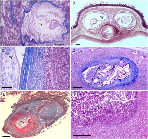 Different types of tissue reactions of human patients to vital, degenerated, and nearly absorbed pentastome nymphs.(A) Viable nymph (ny) of A. armillatus with thin fibrous capsule in the lung. (B) Three cross sections of one viable A. armillatus in the intestinal wall with very little cellular reaction. (C) Body wall of a well-preserved vital nymph (ny) of A. armillatus in the liver with exuvia (arrow), a thick fibrous capsule, and moderate infiltration of the adjacent liver tissue. (D) Dead and degenerated A. armillatus in a lymph node with a thick fibrous capsule. (E) Linguatula nodule with target-like appearance in human lung. In the center of the nodule, a dead degenerated nymph (ny) is visible. Due to the coiled shape of the nymph, two adjacent fibrous rings are discernable on this section. (F) Granulomatous scar with central amorphous mass in the lung. Remnants of the cuticle (arrow) of L. serrata are still left. Scale bars: (C) = 100 mm; all others = 500 µm. Hematoxylin and eosin (B); trichrome stain (all others).