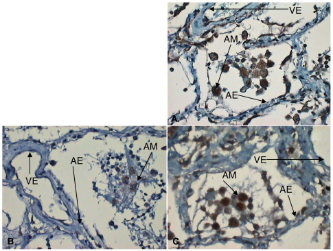 A–C, VEGFR2 (A), NRP-1 (B), and VEGFR1 (C) expression in early ARDS showing consistently reduced alveolar expression of VEGFR2 and NRP-1 (highlighted; original magnification, ×40). Endothelial and macrophage expression as before. AM indicates alveolar macrophages; AE, alveolar epithelium; VE: vascular endothelium.