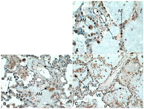 A–C, VEGFR2 (A), NRP-1 (B), and VEGFR1 (C) expression in later ARDS lung (original magnification, ×40). Increased expression for all receptors noted on alveolar epithelium, macrophages, and endothelium. AM indicates alveolar macrophages; AE, alveolar epithelium; VE, vascular endothelium.