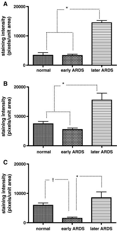 A–C, Graphs of quantitative immunostaining densities (plotted as pixels of staining per unit area) for VEGFR1 (A), VEGFR2 (B), and NRP-1 (C) in each disease state. All data are normally distributed and plotted as mean and standard error. A–B, P < .001 (Bonferroni) for normal versus late and early versus late (highlighted*); otherwise, other comparisons are not significant. C, P < .001 (Bonferroni) for early versus late (highlighted*); P < .05 (Bonferroni) for normal versus early (highlighted†); otherwise, other comparisons are not significant.