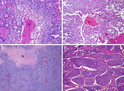 Tumor necrosis in thyroid carcinoma with various growth patterns. a Follicular growth pattern with tumor necrosis (N). b Papillary architecture with necrosis (N). c Tumor with a predominantly solid growth pattern and a large area of necrosis (N). d Tumor with an insular pattern. Necrosis was present elsewhere in the specimen. Reproduced with permission from Hiltzik et al. [14]