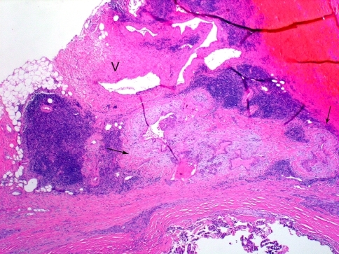 Minimal extra-thyroid extension (ETE) into peri-thyroid fat. The focus of ETE (between arrows) has a desmoplastic reaction (pale staining fibrous tissue). Note nearby thick walled blood vessel (V). Both findings are indicative of ETE
