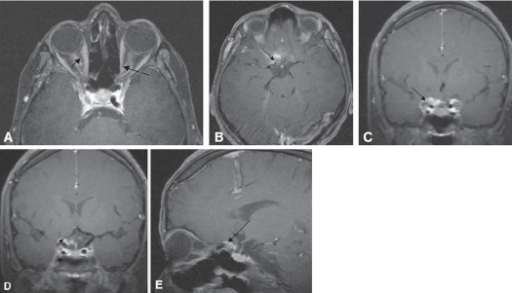 "Post contrast T1-weighted MR image axial MRI with fat saturation showed Tubular growth pattern of bilateral optic nerve sheath meningioma as diffuse enhancement along the length of the left Intraconal optic nerve sheath (black arrows). Optic nerve is seen as central linear hypointensity in comparison to enhanced meningioma on either side, producing the tramtrack sign (A). Axial and coronal T1-weighted, contrast-enhanced images (B and C) showed diffuse enlargement and enhancement along the RT intracanalicular (white arrows) optic nerve sheath with en-plaque growth along the walls of the sulcus chiasmaticus, giving a ""rose thorn"" appearance (black long arrow). Contrast-enhanced coronal and sagittal T1-weighted MR image, with fat suppression through the optic nerve in the midorbit, illustrates enhancing mass affecting the RT planumsphenoidale and inferior orbital fissures with en-plaque growth of tumor within the right optic nerve sheath. The left side meningioma, the tumor was limited to the canal and the immediately adjacent walls of the sulcus chiasmaticus and orbital apex (D and E)."