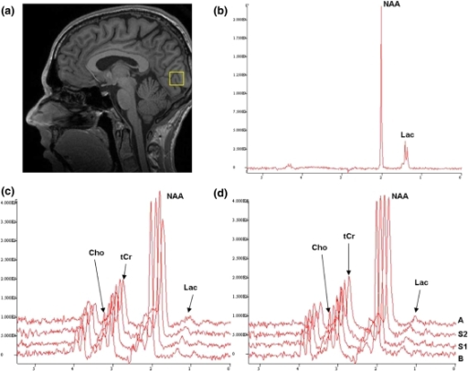 a Sagittal T1-weighted image with a 20-mm cubic VOI localized in the occipital visual cortex. b MR spectrum of a phantom containing NAA (2.01 ppm) and Lac (1.31 ppm). c Stack plot of spectra obtained before (B), during (stimulation 1, S1 and stimulation 2, S2) and following PS (after, A) in controls. d Stack plot of spectra obtained before (B), during (S1 and S2) and following PS (A) in MwoA patients. In vivo metabolites Lac (1.31 ppm), NAA (2.01 ppm), tCr (3.03 ppm) and Cho (3.19 ppm) are marked in the spectra