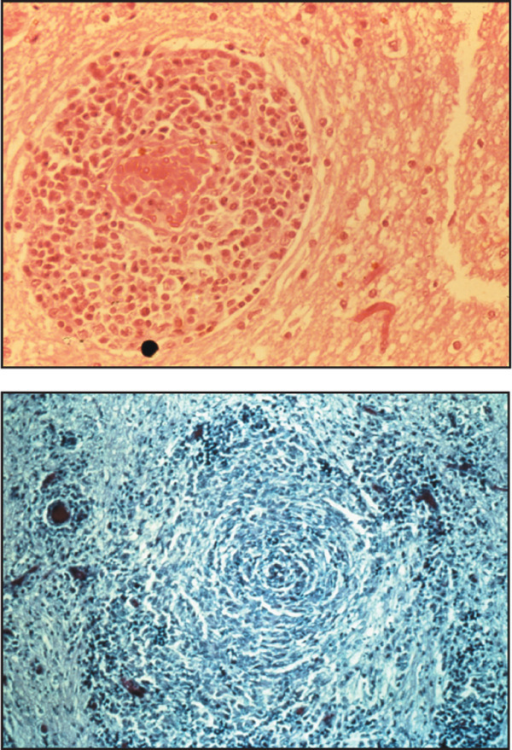 Sections from brains of GME cases: A) Section showing a characteristic perivascular cuff lesion around a blood vessel comprising a predominantly mononuclear inflammatory cell infiltrate. Haemotoxylin and Eosin. Original magnification ×40 (top left). B) Section demonstrating characteristic 'whorling' pattern of inflammatory cells within the CNS white matter. Reticulin-staining. Original magnification ×20 (bottom left).