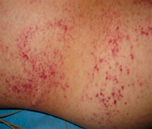 Slide show: Common skin rashes - Mayo Clinic