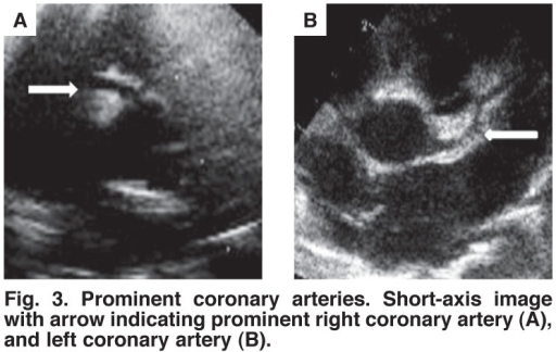Prominent coronary arteries. Short-axis image with arrow indicating prominent right coronary artery (A), and left coronary artery (B).