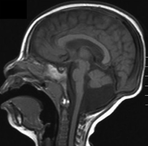 T1-weighted sagittal image of a 2-year-old girl. Note the hypoplastic pons and cerebellum with normal appearance of the corpus callosum