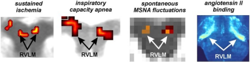 Functional and anatomical localization of the human rostroventrolateral medulla (RVLM). From left to right: bilateral increase in RVLM functional magnetic resonance imaging (fMRI) signal intensity during a sustained muscle ischemia (Sander et al., 2010), maximal inspiratory breath-hold (Macefield et al., 2006), spontaneous fluctuations in muscle sympathetic nerve activity (MSNA) (Macefield and Henderson, 2010), anatomical identification of the RVLM using the binding of Angiotensin II receptors (reproduced with permission from Allen et al., 1998).