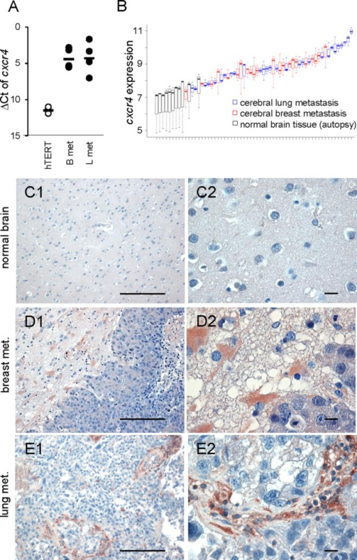 CXCR4 expression in astrocytes and microglia in human brain metastasis samples. (A) qRT-PCR results of cxcr4 illustrated by the ΔCt method. Human cerebral lung (L met) and breast cancer (B met) metastases samples demonstrate a marked expression of CXCR4 in contrast to the benign epithelial cell line hTERT. Line represents the mean and each dot represents the mean value of triplicate analyses with n ≥ 15. (B) Gene expression of cxcr4 is visualized using boxplots across all samples for the three different cxcr4 probes (209201_x_at, 217028_at, 211919_s_at). Samples are ordered by means of cxcr4 gene expression. Black: normal brain tissues, red: cerebral breast metastases, and blue: cerebral lung metastases. (C–E) Expression and localization of CXCR4 were analyzed in normal brains, cerebral metastasis of breast and lung cancer samples by immunohistochemistry. In normal brains, CXCR4 was undetectable (C), whereas in cerebral metastases, CXCR4 expression was detectable in the metastatic cells, the metastatic stroma, and especially in astrocytes in the gliosis region adjacent to the tumor cells (D and E) (scale bars represent 20 µm, in the left panel 200 µm). [Color figure can be viewed in the online issue, which is available at wileyonlinelibrary.com.]