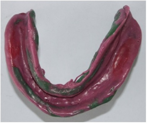 Completed mandibular impression with monophase polyvinylsiloxane material.