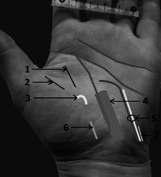 Distances between creases, nerves, and arteries: 1 radial proper palmar digital nerve to the index, 2 ulnar proper palmar digital nerve to the thumb, 3 recurrent motor branch of the median nerve, 4 carpal tunnel, 5 ulnar nerve, artery and nerve of Henle, 6 palmar cutaneous branch of the median nerve (PCBMN), 7 palmar cutaneous branch of the ulnar nerve (PCBUN)