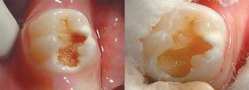 Clinical aspect of cavity before and after removal of carious tissue withchemo-mechanical caries removal