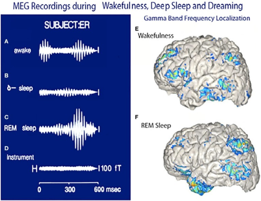Magnetoencephalographic (MEG) recordings in three functional states. (A) Magnetic recording demonstrating gamma band activity following a sensory stimulus in awake subject. (B) Recordings from same subject during deep, dreamless sleep. (C) Gamma band activity while dreaming. (D) Instrument noise in the absence of a subject. (E) Localization of gamma band activity in an awake subject note frontal and parietal and temporal association lobe activity. (F) Localization of gamma band activity recorded when the subject was dreaming. Note the lack of frontal lobe activity and the powerful activation of the temporal pole. (Llinás and Ribary, 1993 and unpublished observations.).
