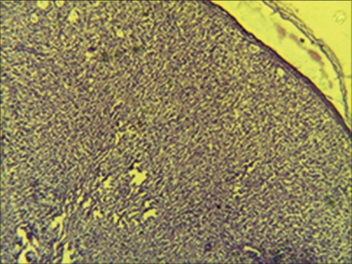 Photomicrograph showing atrophic epidermis, with dermis containing cellular infiltrate of round to polyhedral foamy histocytes with vacuolated cytoplasm and a fair number of plump spindle cells resembling fibroblasts, arranged in a whorled pattern (H and E, ×100)