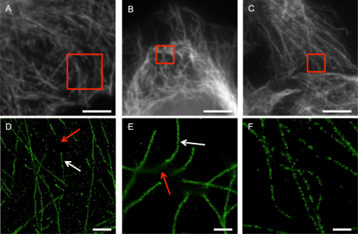 SMLM microtubule images of sub-optimally fixed cells reveal sub-diffraction artifacts not observable in epifluorescence images.(A–C) Epifluorescence images of COS-7 cells stained for tubulin using Alexa Fluor 647 after fixation with PFA (A) for a shorter period than optimal, (B) at a lower concentration than optimal, and (C) for a longer period than optimal These images are not readily identified as having fixation artifacts. (D–F) Corresponding SMLM images of sub-areas from A–C show clear sub-diffraction scale damage to the microtubule architecture with some areas well preserved and continuously stained in D–E (white arrows) and other long stretches of filament missing or damaged beyond antibody-epitope recognition. Scale bars A–C: 5 μm, D: 1 μm, E–F: 500 nm.