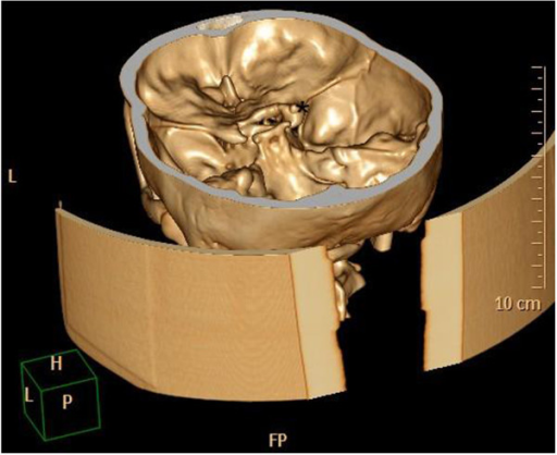 Robust processus clinoideus (*) on the right side – three-dimensional computed tomography reconstruction.