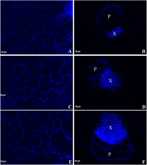 Fluorescence micrographs showing surface and transverse sections of 'Ventura'.Lignin autofluorescence was visualized following ultraviolet excitation at 365 nm (Scale bar = 20 μm). (A), (C), (E): Fluorescence micrographs showing surface sections of leaf blade; (B), (D), (F): Fluorescence micrographs showing transverse sections of petiole. (A), (B): Stage 1 of 'Ventura'; (C), (D): Stage 2 of 'Ventura'; (E), (F): Stage 3 of 'Ventura'. P: phloem; X: xylem.