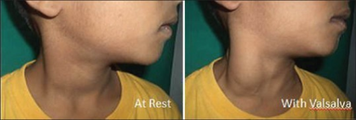 The swelling markedly increases in size and was fusiform in shape on performing valsalva maneuver