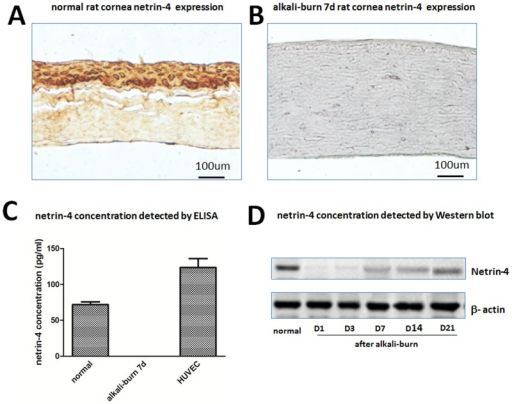 Levels of netrin-4 in endothelial cells, and in cornea before and after alkali-burn were detected by ELISA, IHC and Western blot.Netrin-4 expression in normal (A) and after alkali-burn rat cornea (B) by immunohistochemical staining. Netrin-4 concentrations in rat cornea and HUVEC (C). Netrin-4 concentration in normal rat cornea and different time after alkali-burn treatment.