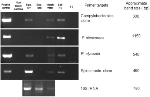 Species-specific PCR based detection of microbial populations in genomic DNA extracted from samples collected in June 2009 from Sippewissett Marsh or the laboratory-acclimated N. vectensis population. Lanes 1–6 correspond to (1) cloned 16S rRNA sequence as positive control, (2) negative control consisting of non-target 16S rRNA DNA, (3) N. vectensis from Sippewissett Marsh, (4) Sippewissett Marsh sediment, (5) Seawater from Sippewissett Marsh at sampling site, (6) laboratory-adapted anemones, and (7) No template control (master mix + water only), respectively. Positive controls were 105 copies of target 16S rRNA and samples were 10 ng DNA.
