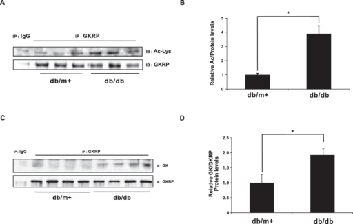 Increased acetylation of GKRP in db/db mice.(A) Western blot of acetylated GKRP in db/db mouse livers. Cell lysates were immunoprecipitated by an anti-GKRP antibody and immunoblot performed to detect endogenous acetylated GKRP using an anti-Ac-Lys antibody. (B) Band intensities of acetylated GKRP, as quantified by Image J software. The values from db/m + mice were set to 1.0 (n = 8). (C) Interactions between GK and GKRP in control and db/db mice. Endogenous GKRP was immunoprecipitated from liver homogenates of db/m + and db/db mice, using GKRP antibody, and then immunoblotted by an anti-GK antibody. (D) Band intensities of the GK-GKRP complexes were quantified using Image J software. The values from db/m + mice were set to 1.0 (n = 4). Values are expressed as means ± SEM, *p ≤ 0.05.