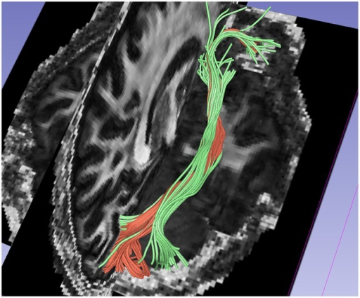 Comparision of results between 1-fiber NODDI model tractography(red) and 2-fiber NODDI model tractography(green) for the IOFF fibers.
