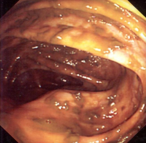 Colonoscopy: Extrinsic compression of caecal pole (arrow showing caecal bulge in the caecal wall).