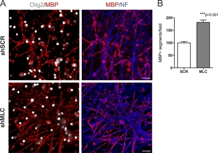 Knockdown of myosin II in OL-DRG cocultures enhances myelin formation. (A) 3-wk-old myelinating OL-DRG cocultures stained for MBP, Olig2, and neurofilament. Cocultures were infected with a lentiviral vector expressing shRNA against the regulatory chain of myosin II (shMLC) or nontargeting scrambled sequence (shSCR). Knockdown of MLC in OPC-DRG cocultures resulted in a significant increase in myelination similar to that observed in cultures treated with blebbistatin. Myelination in control cultures infected with vector alone or in cultures where neurons were preinfected with lentivirus was comparable to that observed in nontreated control culture (not depicted). Bars, 50 μm. (B) Quantitation of MBP+ segments per field. Data represent mean ± SEM from two independent experiments (three cultures per condition per experiment).