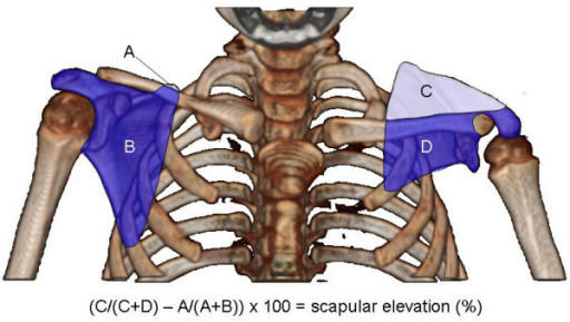 Measuring scapular elevation to quantitate the extent of the SHEAR deformity. A 3D-reconstruction of axial bilateral CT images rotated into the anterior view is used to measure scapular elevation. The area of each portion of both scapulas is measured as indicated (areas A-D). The area above the scapula is divided by the total scapular area and corrected for rotational artifacts by subtraction of the unaffected side from the affected side before multiplying by 100 to obtain percent elevation. Shown here is the CT for patient 1 with 37% scapular elevation.