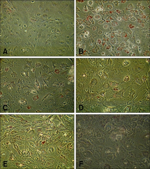 Effect of PI on adipogenesis in 3T3-L1 cells. Cells were incubated with insulin for 4 days and then with PI in different dose to observe lipids accumulation. (A) Control; Showing fibroblast like cells without lipids accumulation. (B) Insulin alone (10 µg/mL); Cells became round and a marked increase in lipids was recorded. (C-F) C; Insulin plus PI (×300), D; Insulin plus PI (×200), E; Insulin plus PI (×150) and F; Insulin plus PI (×100). Oil red O stain, ×400.