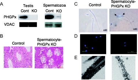 Depletion of PHGPx gene in spermatocyte causes male infertility with oligoasthenozoospermia in mice. Mice with spermatocyte-specific deletion of the PHGPx gene (A) showed male infertility with two significant conspicuous phenotypes: first, a decreased number of spermatozoa in the epididymis caused by the depletion of spermatogenic cells in seminiferous tubules (B) and second, loss of forward motility of spermatozoa due to hairpin-like bending of the tail in the distal midpiece region (C) and/or mitochondrial dysfunction including mitochondrial membrane potential (D) and ultrastructure (E).