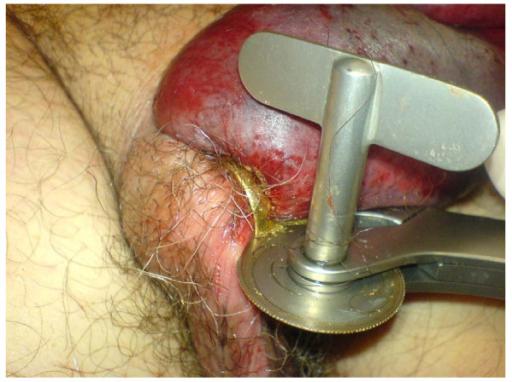 Penis schief - Sexualanatomie - med1