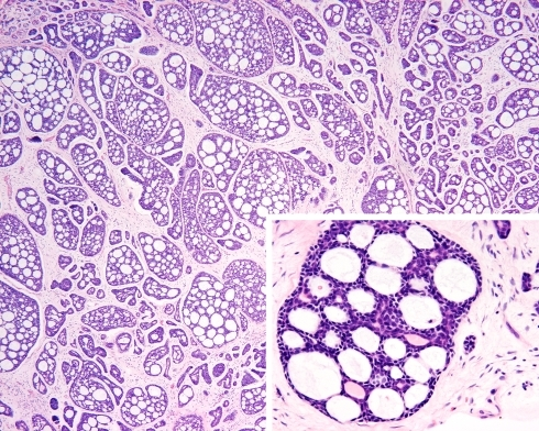 "Ceruminous adenoid cystic carcinoma. The overall cribriform (""Swiss-cheese"") pattern is seen on both the low power and within the inset"