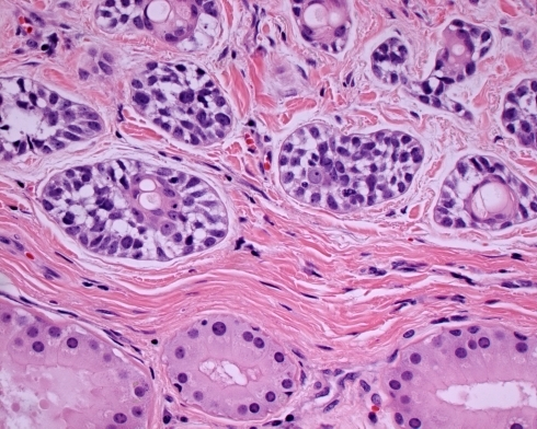 "Ceruminous adenoid cystic carcinoma. The lower aspect contains uninvolved ceruminous glands with small slightly yellow ceroid granules in the cytoplasm. Note the ""basaloid"" cells surrounding brightly eosinophilic luminal cells in the center of the tumor nests, a feature of ceruminous differentiation"