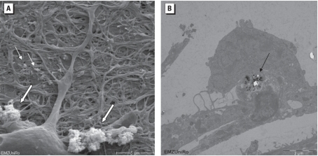 REM (A) and TEM (B) images of neuronal network cultures exposed to 5 μg/cm2 Fe2O3 NPs for 24 hr. In A, particles were detected as agglomerates (large arrows) and as single particles (small arrows); bar = 5 μm. In B, NPs were detected inside cells (arrow); bar = 2 μm.