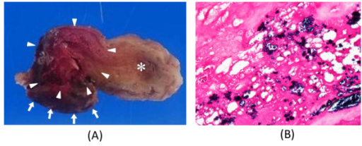 (A): The gross pathological findings were a very fragile myxoid tumor (allow head) attached the septal wall (allow) with the red thrombus and vegetation (*). (B): Hematoxylin and eosin (HE) and showed that the mass was an atrial myxoma, and gram staining of the infected portion revealed the presence of gram-positive coccal bacteria.