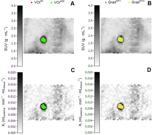 Coronal images of the measured tumor volumes. Coronal images of the measured tumor volumes derived from SUV and Patlak images of one patient with NSCLC, obtained using four different tumor delineation methods (i.e., VOI50, VOIA50, GradWT1, and GradWT2).