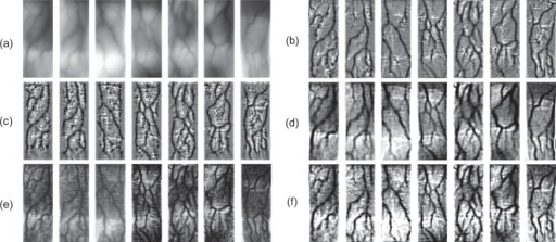Comparisons with other methods. (a) Some captured finger-vein images. (b) The results from histogram template equalization (HTE) [5]. (c) The results from high frequency emphasis filtering (HFEF) [13]. (d) The results from circular Gabor filtering (CGF) [7]. (e) The results from image dehazing (ImD) [19]. (f) The results from the proposed method.