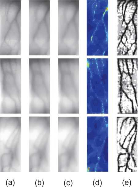 Scattering removal experiments. (a) Some captured finger-vein images I(x, y). (b) The estimated scattering components V (x, y). (c) The estimated scattering radiations Ir(x, y). (d) The estimated transmission maps T (x, y). (e) The restored images I0(x, y).