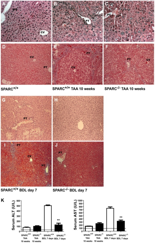 Reduced liver damage in SPARC deficient mice.(A–F) Representative photomicrographs of liver sections from untreated SPARC+/+ (A) or 10 weeks TAA-treated SPARC+/+ or SPARC−/− mice (n  = 6–8), stained with H&E (A–C) or Masson's trichrome (D–F). (G–J) Representative photomicrographs of liver sections from SPARC+/+ and SPARC−/− mice subjected to BDL, stained with H&E (G–H) or Masson's trichrome (I–J). Original magnification 200X. PT, portal tract; CV, central vein. (K) Serum ALT and AST levels were measured at the indicated time in TAA-treated and BDL mice. Dotted lines, upper normal limited. **p<0.05 versus treated SPARC+/+.