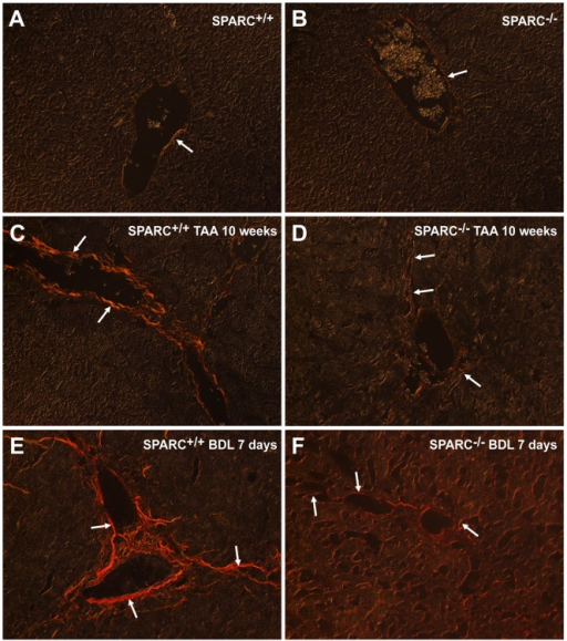 Reduced maturation of SPARC−/− collagen fiber deposits.Representative pictures showing picrosirius red stained liver sections obtained from SPARC+/+ (A,C,E) or SPARC−/− (B,D,F) mice (n  = 6–8) observed under polarized light. Animals were left untreated (A,B), or were TAA-treated during 10 weeks (C,D) or subjected to BDL (E, F). Note the predominant mature and compacted nature of collagen fibers in wild-type treated mice and their immature and thin appearance in SPARC−/− animals. Original magnification 400X.