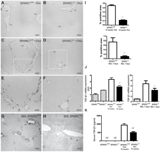 Reduction in the number of active myofibroblasts and in liver and serum TGF-β1 levels in SPARC deficient fibrotic mice.(A–H) Representative pictures taken from liver sections of untreated SPARC+/+ and SPARC−/− (A,B), 10 weeks TAA treated SPARC+/+ (C,E) andSPARC−/− (D,F), or BDL SPARC+/+ (G) and SPARC−/− (H) mice immunostained for α-SMA. (E,F) are higher magnification images from box areas in C,D respectively. (I) Quantitative data of densitometric analyses of αSMA immunostained area from TAA-treated and BDL SPARC−/− or SPARC+/+ mice. **p<0.01, Mann-Whitney test. (J) Quantitative data of TGF-β1 mRNA levels obtained by qPCR analysis from 10 weeks TAA-treated and BDL SPARC+/+ or SPARC−/− mice (n  = 6–8). Data are expressed as relative values to those of wild-type mice without treatment. *p<0.05, SPARC+/+ treated vs SPARC−/− treated. Mann-Whitney test. (K) Serum levels of TGF-β1 were measured after 10 weeks of TAA treatment. nd, non-detectable. **p<0.01, Mann-Whitney test.