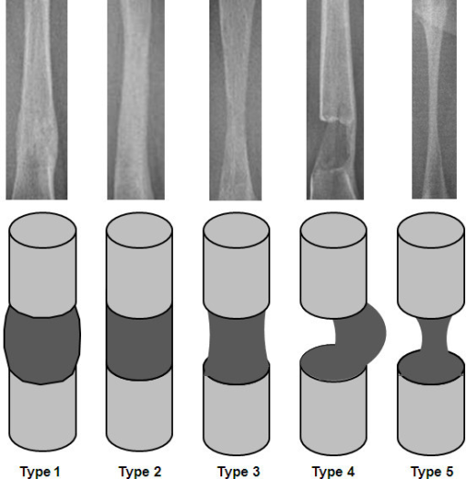 Radiographic appearance of the five types of callus shape in the Li classification [[12]: 1, fusiform; 2, cylindrical; 3, concave hourglass shape; 4, incomplete, only lateral; and 5, only central, filiform.